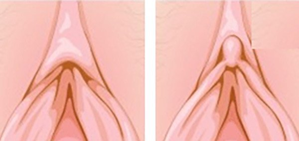 Clitoral Hood Reduction Before & After diagram