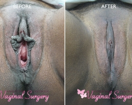 Vaginal Rejuvenation Before and After