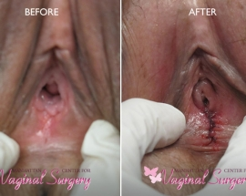 Hymenoplasty Before and After